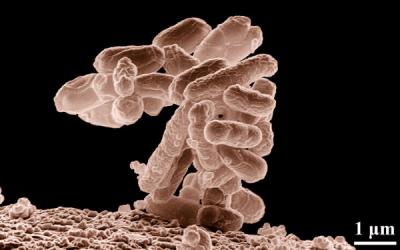 Cómo eliminar las bacterias coliformes del agua