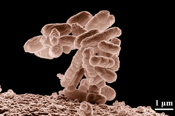 eliminar bacteria ecoli